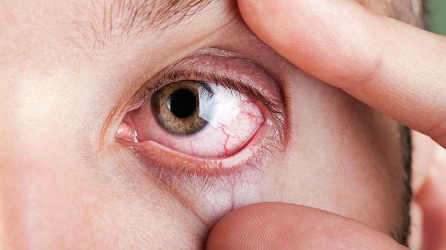 Beberapa nutrisi terbaik untuk atasi mata kering